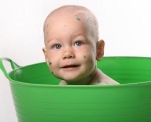 Можно ли мыться при ветрянке: мнение медиков, советы