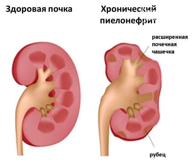 Пиелонефрит у детей: причины, формы, метод лечения