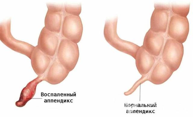 Аппендицит у детей: признаки и особенности заболевания