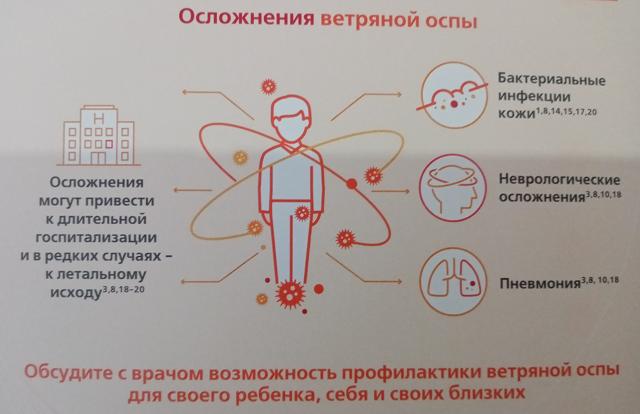 Как передается ветрянка, профилактика, симптомы заболевания