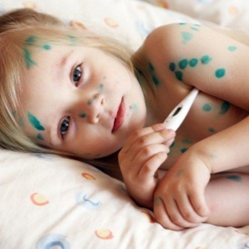 Как начинается ветрянка у детей разных возрастов: симптомы, первые признаки