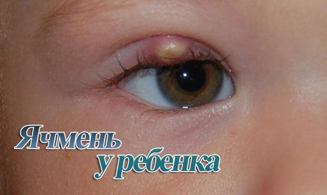 Ячмень на глазу у ребенка - как лечить