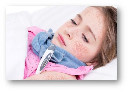 Скарлатина у детей: перечень основных симптомов, лечение