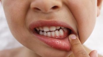 Граммидин детский: показания, особенности препарата