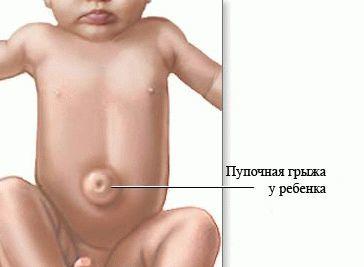 Грыжа пупочная у новорожденных: что нужно делать, лечение