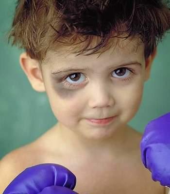 Синяки под глазами у ребенка: причины, методы устранения