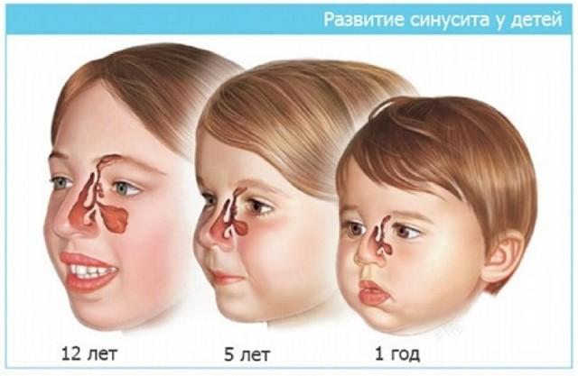 Синусит у ребенка: общие симптомы, лечение, препараты