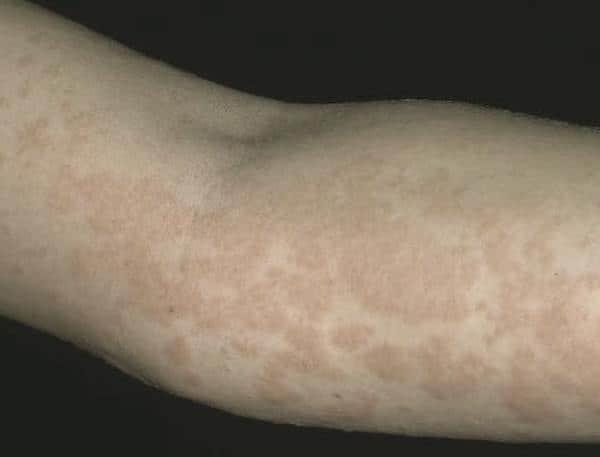Крапивница: виды, диагностика и лечение, первая помощь