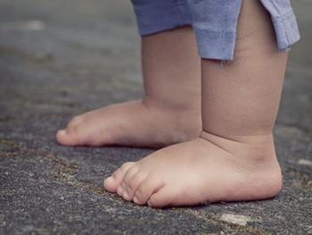 Плоскостопие у детей - причины, фото, лечение