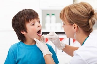 Антибиотики при ангине: как выбрать лекарство для детей